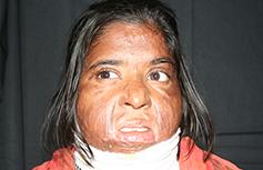 Fotografía real de mujer atacada con ácido